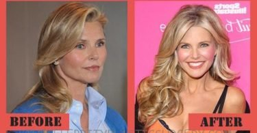 Best plastic surgery before and after celebrity weight