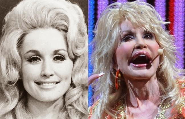 Dolly Parton Plastic Surgery Fail - Celebrity News, Gossips, Rumors and Plastic Surgery - Stars Days